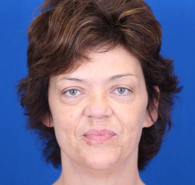 Facelift/Neck Lift Gallery - Patient 24802719 - Image 1