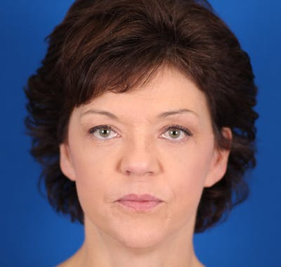 Facelift/Neck Lift Gallery - Patient 24802719 - Image 2
