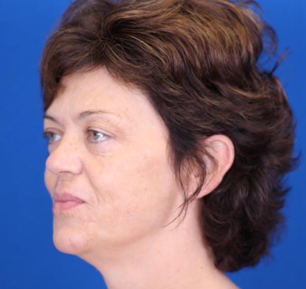 Facelift/Neck Lift Gallery - Patient 24802719 - Image 5