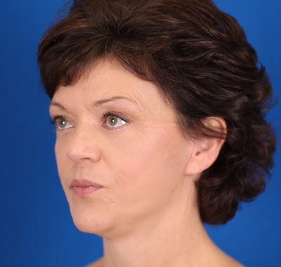 Facelift/Neck Lift Gallery - Patient 24802719 - Image 6