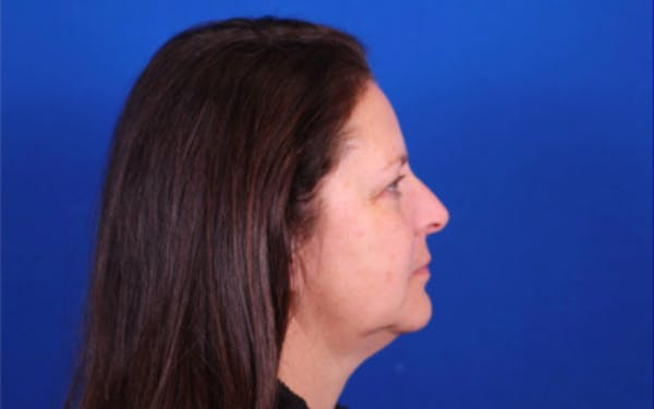 Facelift/Neck Lift Gallery - Patient 24802722 - Image 3