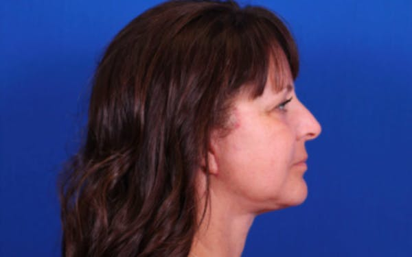 Facelift/Neck Lift Gallery - Patient 24802722 - Image 4