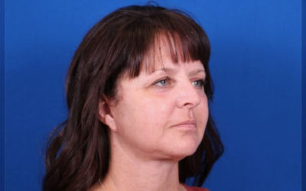 Facelift/Neck Lift Gallery - Patient 24802722 - Image 6