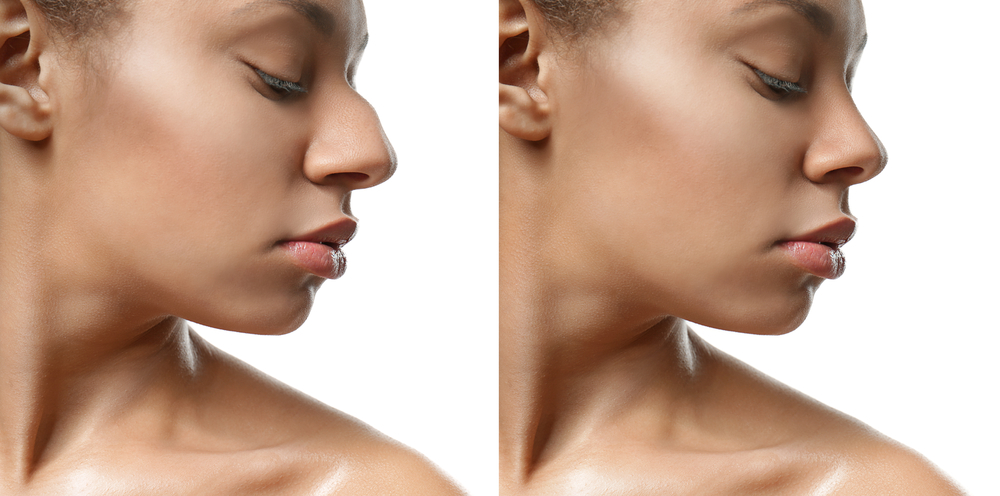 Omaha Facial Plastic Surgery & Medspa Blog | How Long Is Recovery From Rhinoplasty?