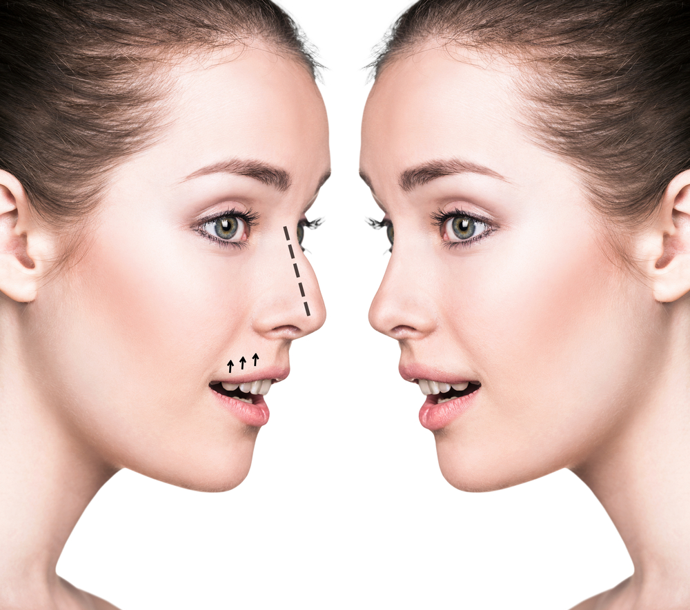 Omaha Facial Plastic Surgery & Medspa Blog | What Is the Best Age to Get a Nose Job?