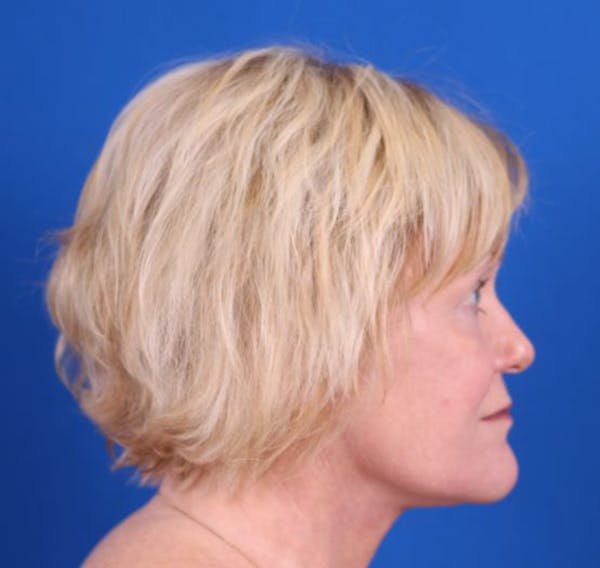 Facelift/Neck Lift Gallery - Patient 26562763 - Image 6
