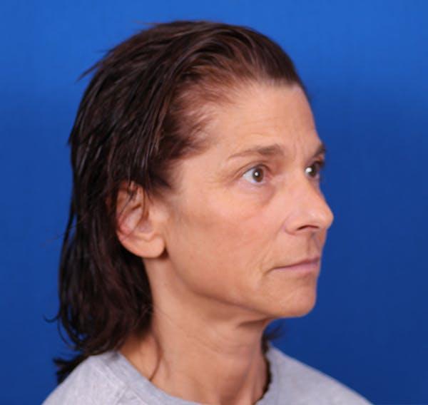 Facelift/Neck Lift Gallery - Patient 26562764 - Image 3