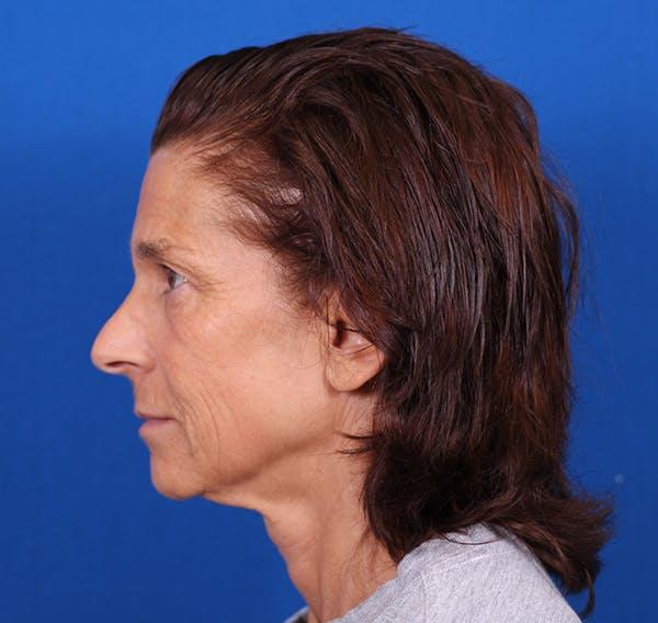 Facelift/Neck Lift Gallery - Patient 26562764 - Image 5
