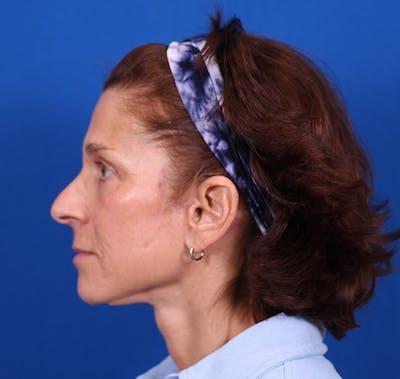 Facelift/Neck Lift Gallery - Patient 26562764 - Image 6