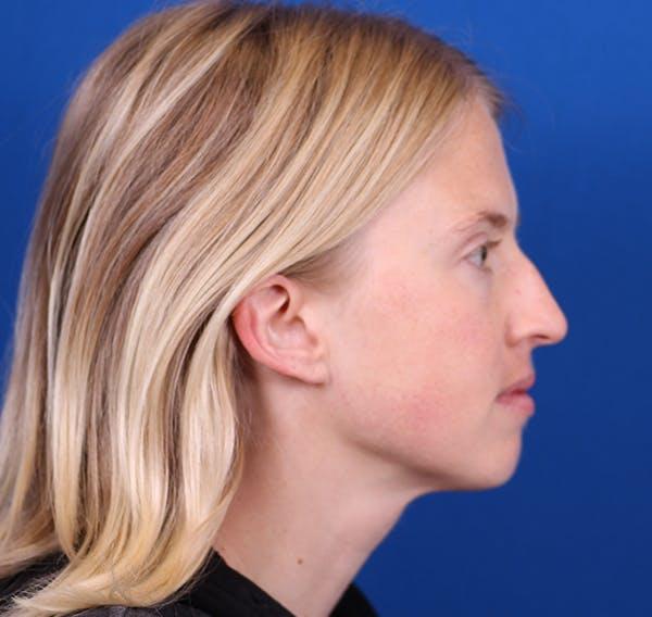 Rhinoplasty Gallery - Patient 26562821 - Image 5