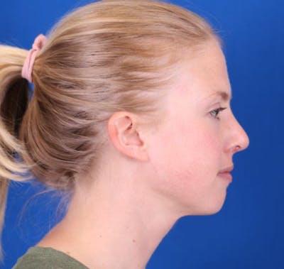 Rhinoplasty Gallery - Patient 26562821 - Image 6