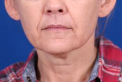 Facelift/Neck Lift Gallery - Patient 27116500 - Image 1