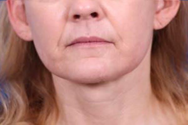 Facelift/Neck Lift Gallery - Patient 27116500 - Image 2