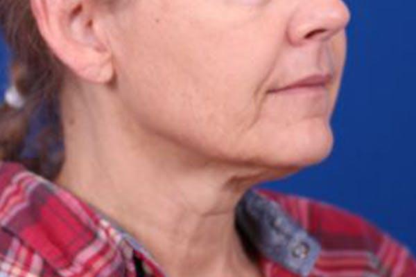 Facelift/Neck Lift Gallery - Patient 27116500 - Image 3