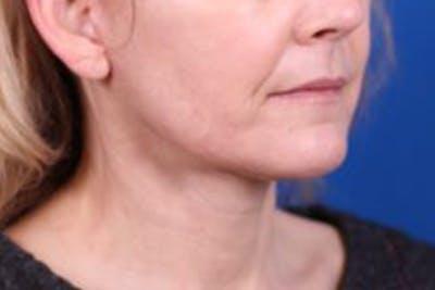 Facelift/Neck Lift Gallery - Patient 27116500 - Image 4