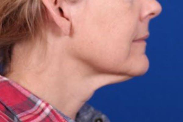 Facelift/Neck Lift Gallery - Patient 27116500 - Image 5