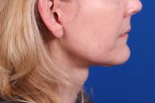 Facelift/Neck Lift Gallery - Patient 27116500 - Image 6