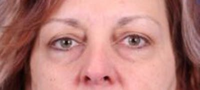 Blepharoplasty Gallery - Patient 35025648 - Image 1