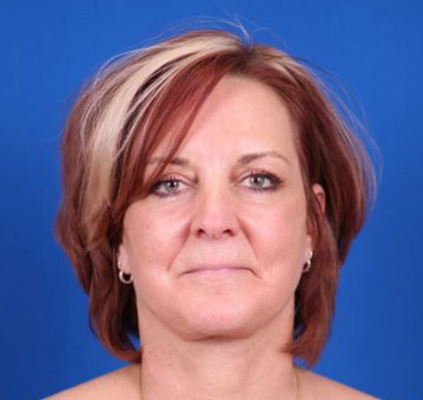 Facelift/Neck Lift Gallery - Patient 35032688 - Image 2