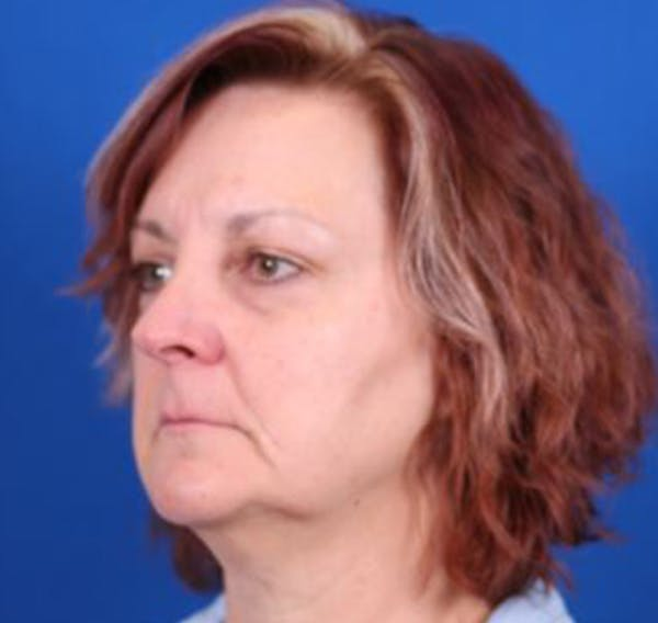 Facelift/Neck Lift Gallery - Patient 35032688 - Image 3