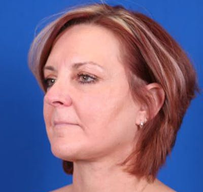 Facelift/Neck Lift Gallery - Patient 35032688 - Image 4