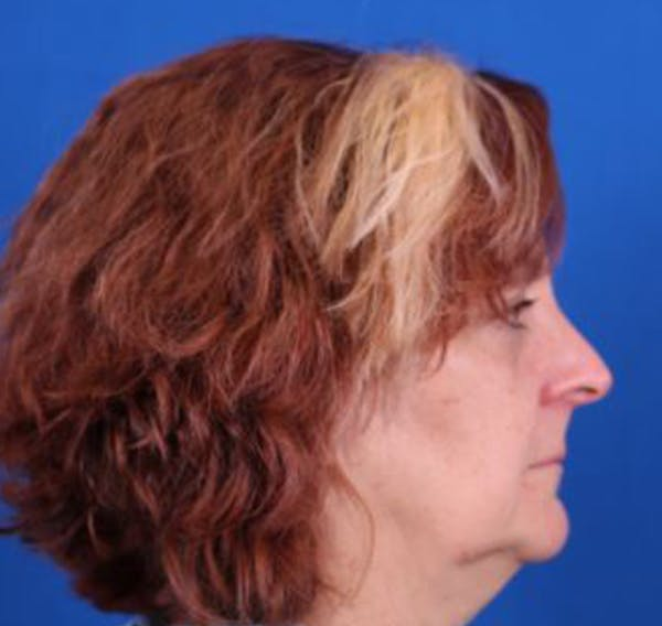 Facelift/Neck Lift Gallery - Patient 35032688 - Image 5