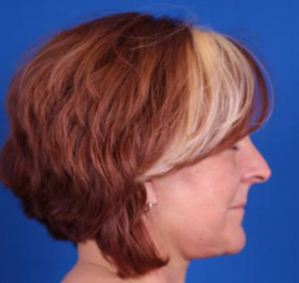 Facelift/Neck Lift Gallery - Patient 35032688 - Image 6