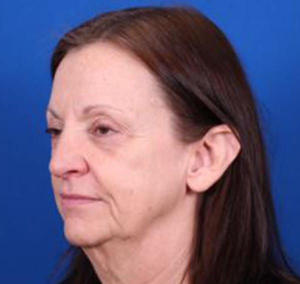 Facelift/Neck Lift Gallery - Patient 35040347 - Image 3