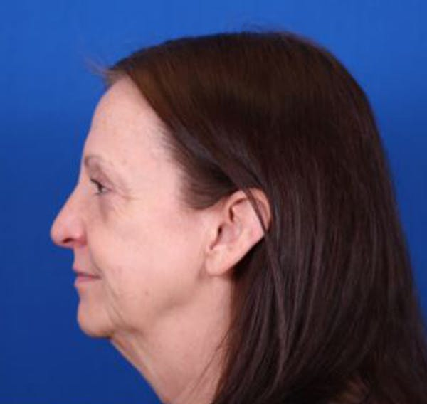 Facelift/Neck Lift Gallery - Patient 35040347 - Image 5