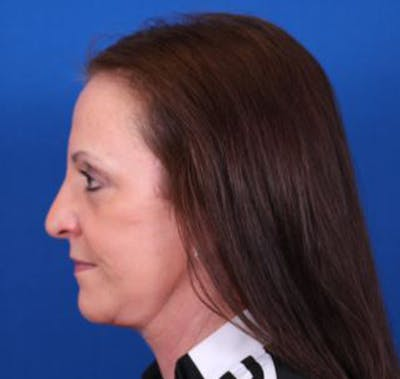 Facelift/Neck Lift Gallery - Patient 35040347 - Image 6