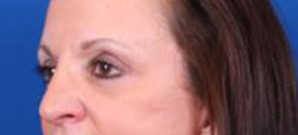 Blepharoplasty Gallery - Patient 35040494 - Image 4