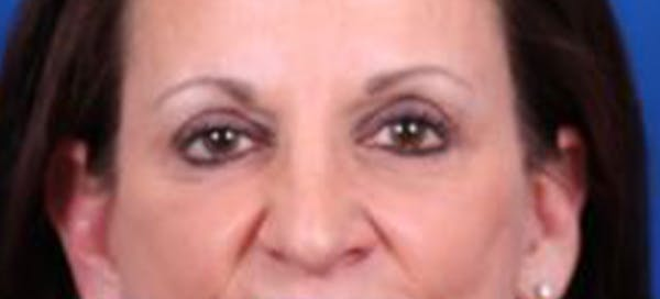 Blepharoplasty Gallery - Patient 35040494 - Image 2