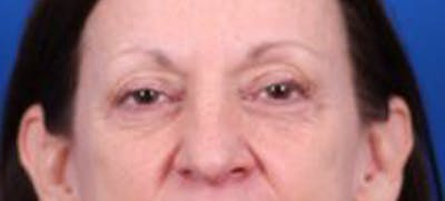 Blepharoplasty Gallery - Patient 35040494 - Image 1