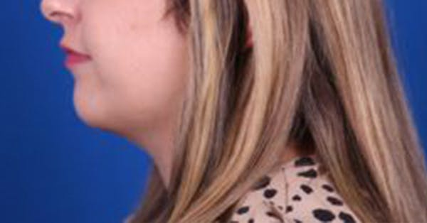 Neck Contouring Gallery - Patient 54673847 - Image 6