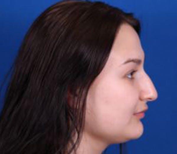 Rhinoplasty Gallery - Patient 54674416 - Image 5