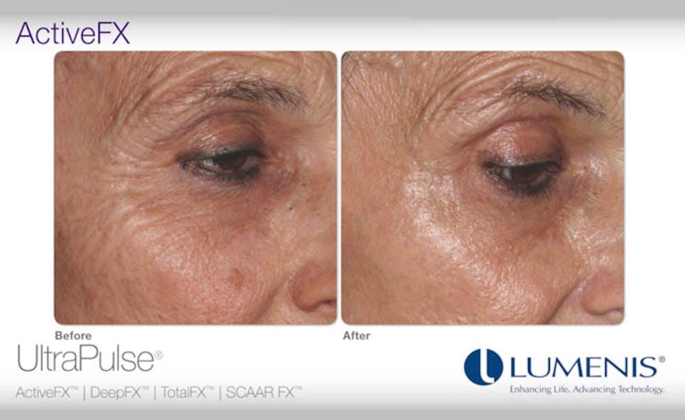 Active FX Gallery - Patient 24560259 - Image 1