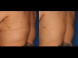 Before and After of CoolSculpting in San Diego