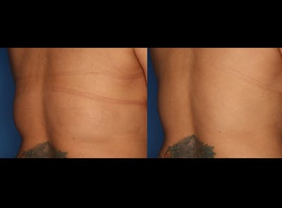 CoolSculpting Gallery - Patient 24560505 - Image 2