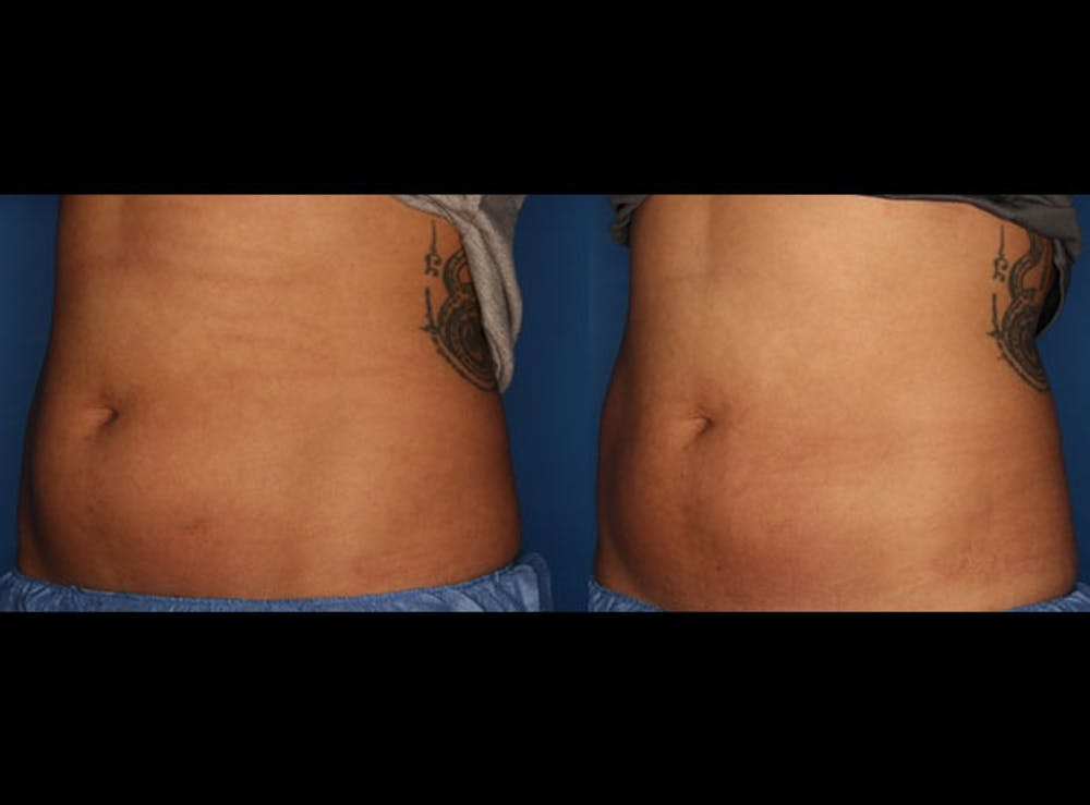 CoolSculpting Gallery - Patient 24560515 - Image 1