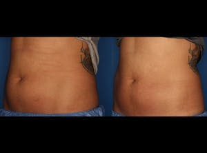 Before and After of CoolSculpting in La Jolla