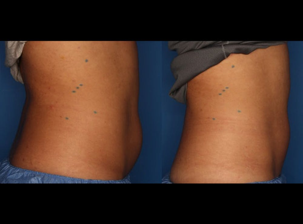CoolSculpting Gallery - Patient 24560515 - Image 4
