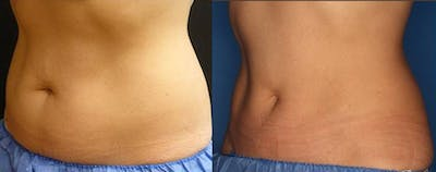 CoolSculpting Gallery - Patient 24560528 - Image 1