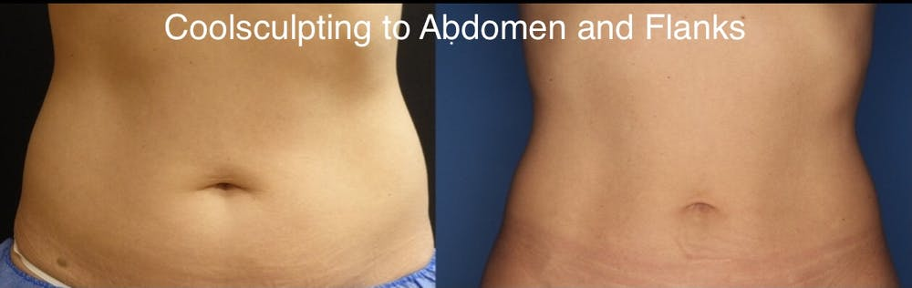 CoolSculpting Gallery - Patient 24560528 - Image 2