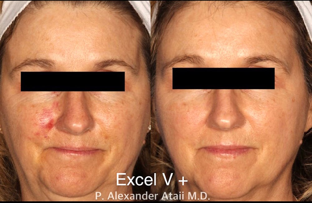 Excel V. Gallery - Patient 24560523 - Image 1