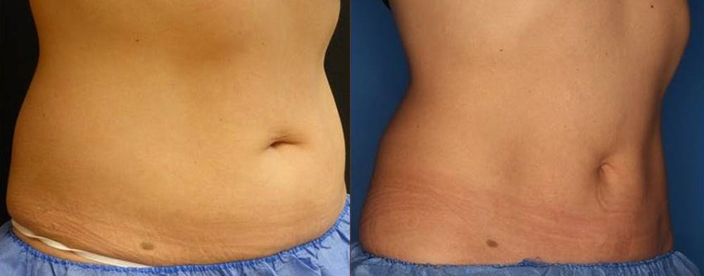 CoolSculpting Gallery - Patient 24560528 - Image 3