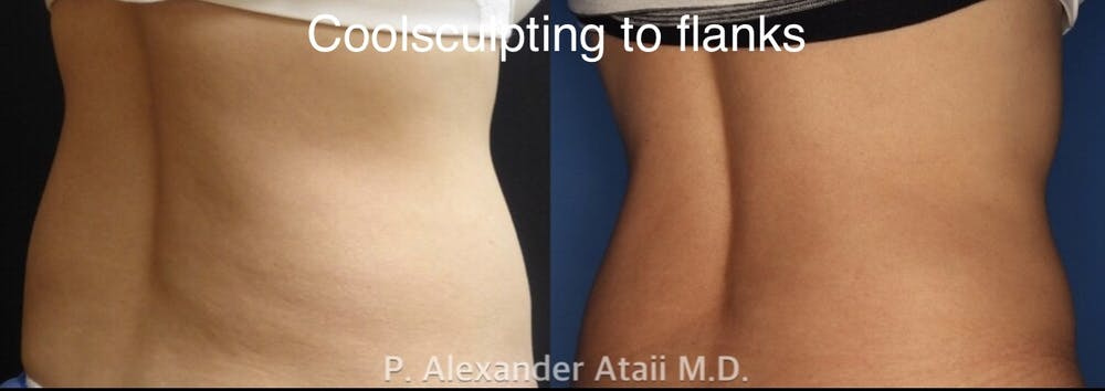CoolSculpting Gallery - Patient 24560528 - Image 5