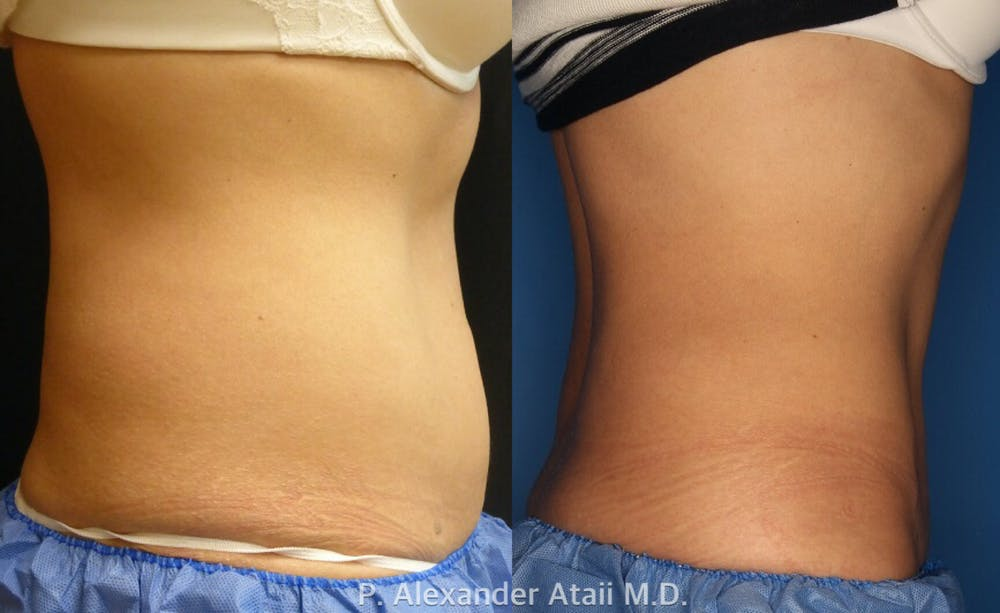 CoolSculpting Gallery - Patient 24560528 - Image 6