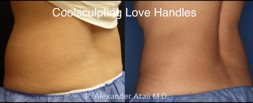 CoolSculpting Gallery - Patient 24560528 - Image 7