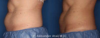 CoolSculpting Gallery - Patient 24560539 - Image 1