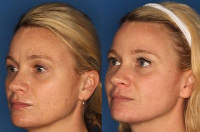 IPL Photorejuvenation Gallery - Patient 24560548 - Image 1